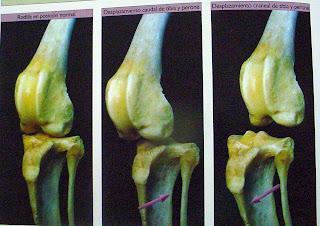 rotura del ligamento cruzado anterior en el perro
