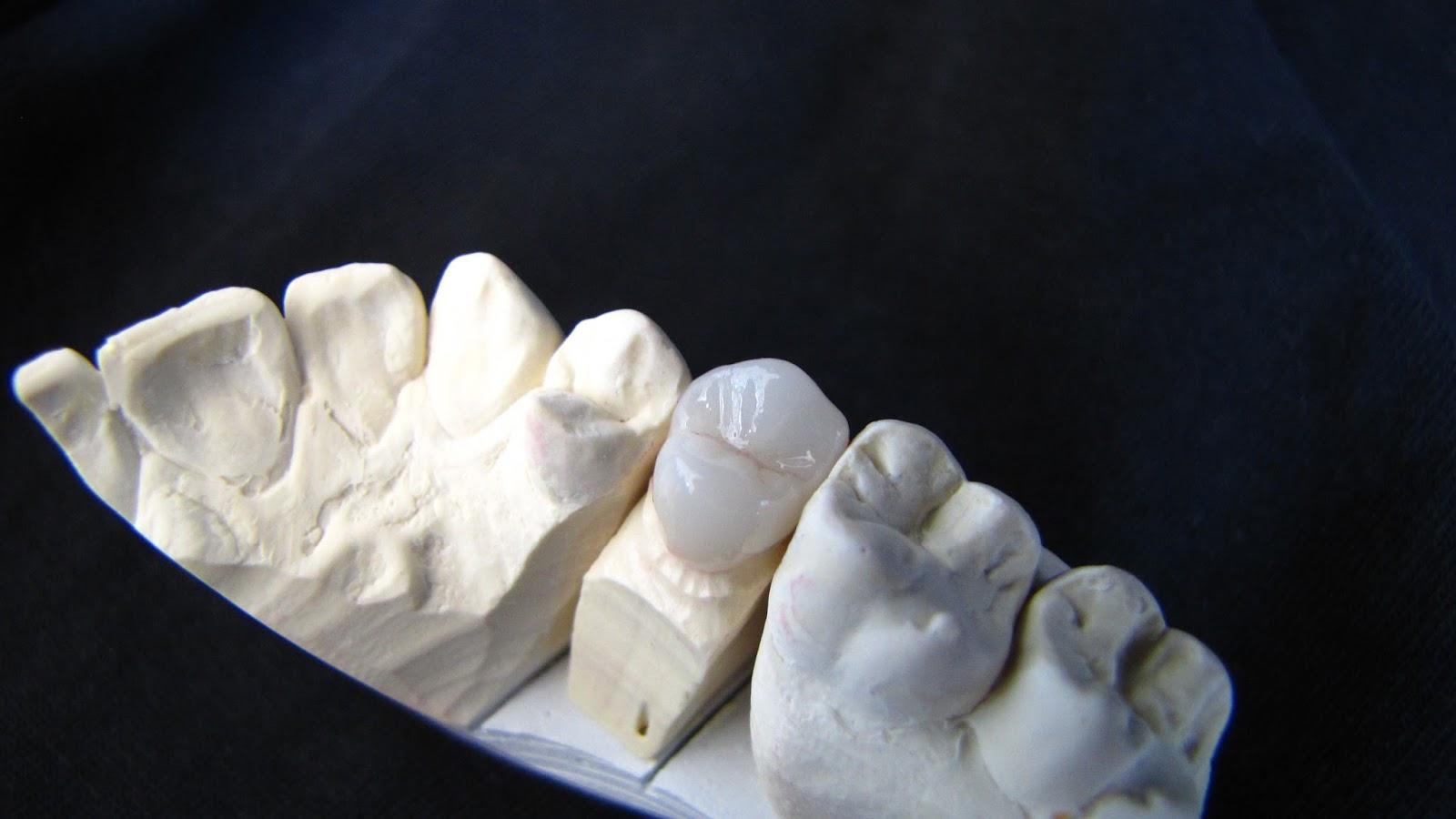 prothesiste dentaire en martinique 97212 saint joseph en martinique   laboratoire prothesiste larcher jose  fabrication de matériel médico-chirurgical et dentaire (3250a) 97180 sainte anne en .