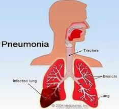 Faktor Pemicu Terjadinya Penyakit Pneumonia