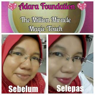 Testimoni Adara Foundation