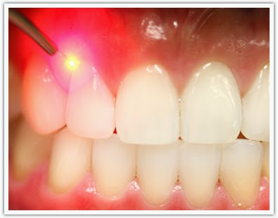 http://www.laserdentalclinicbangalore.com/Laser-Treatment.php