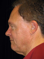 Male Facelift Surgery Marin County