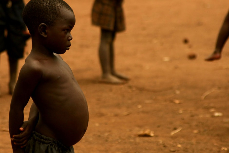 Starving African Child Belly The condition his stomach is