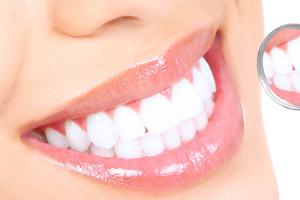 Farmaceutica Curiosa Clareadores Dentais Poderao Ser Vendidos