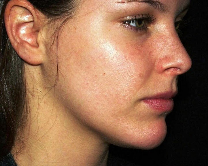 How to Overcome Acne Naturally
