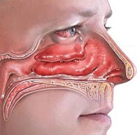 nose bleeds side effects of steroids