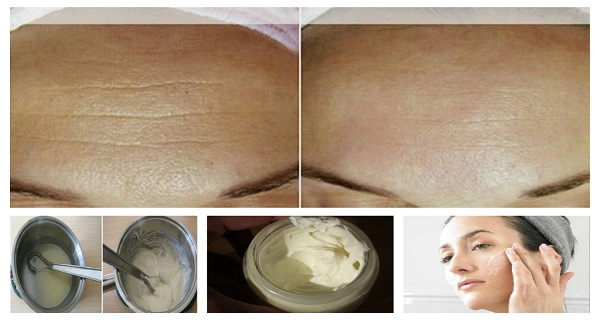 This homemade anti-aging cream not only helps reduce wrinkles, but also prevents new ones from forming. Another great thing about it is that it's made of ...
