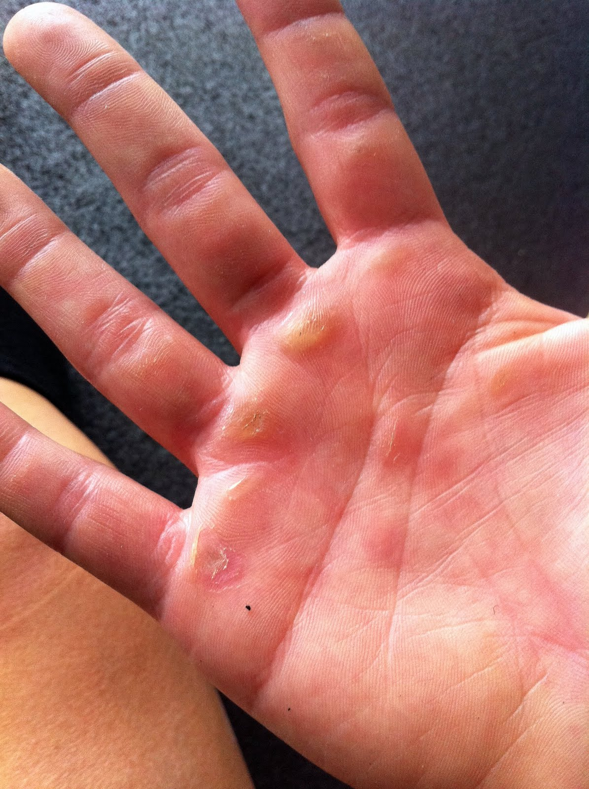 Slideshow: Blisters Causes and Treatment - WebMD