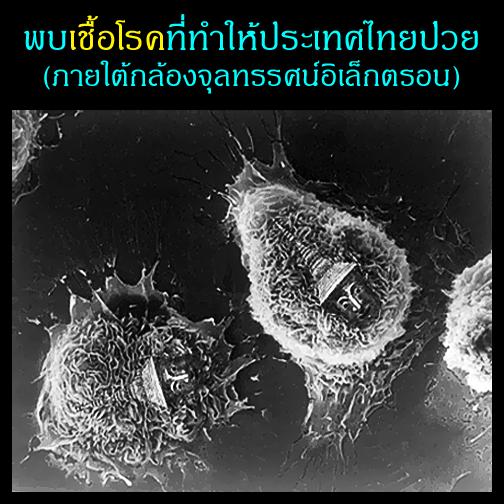 พบเชื้อโรคที่ทำให้ประเทศไทยป่วย (ภายใต้กล้องจุลทรรศน์อิเล็กตรอน)