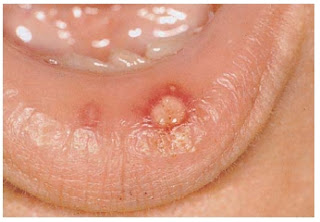 Recurrent Aphthous Ulcers : Definition , Causes , C/F , D/D , Treatment
