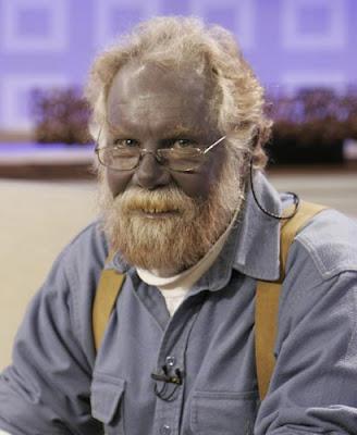 Paul Karason, el hombre azul