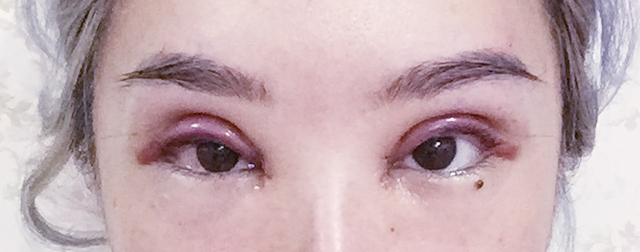 Xiaxue.blogspot.com - Everyone's reading it.: My Double ... Bad Double Eyelid Surgery