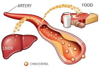 GB. Cara Mengatasi Kolesterol Tinggi