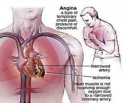 Gejala Penyakit Jantung - Dada Terasa Nyeri