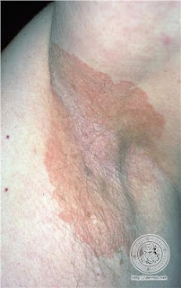 Eritrasma