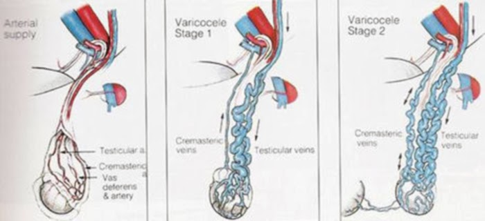 how to get rid of varicose veins in scrotum