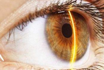 Η νέα μέθοδος που κάνει θραύση - Αλλαγή χρώματος ματιών με λέιζερ