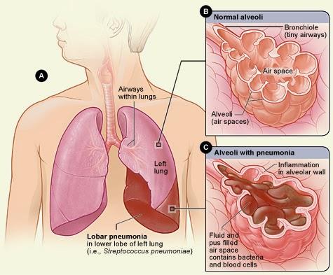 Info Kesehatan