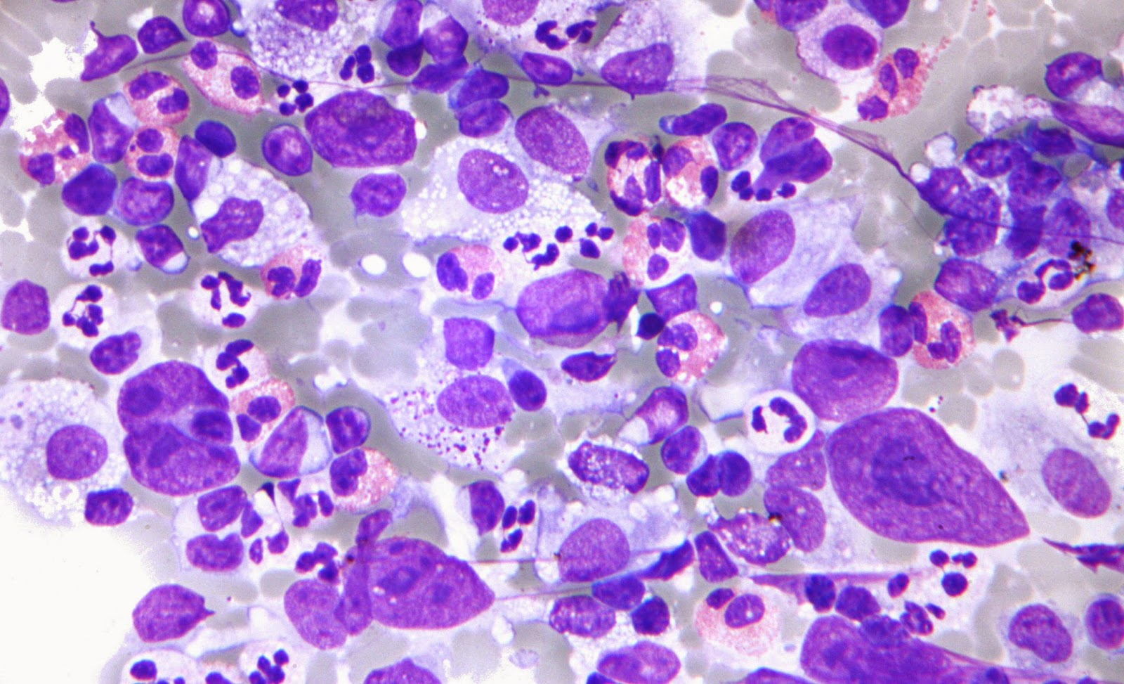 Immunotherapy Drugs Improve Outcomes In Hodgkin Lymphoma Patients