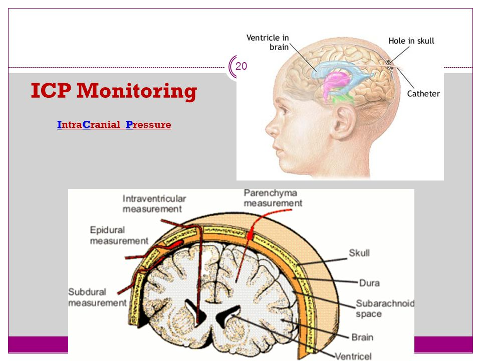 PENETRATING INJURIES OF THE BRAIN. Head Injuries Part 4 | DipNB ...