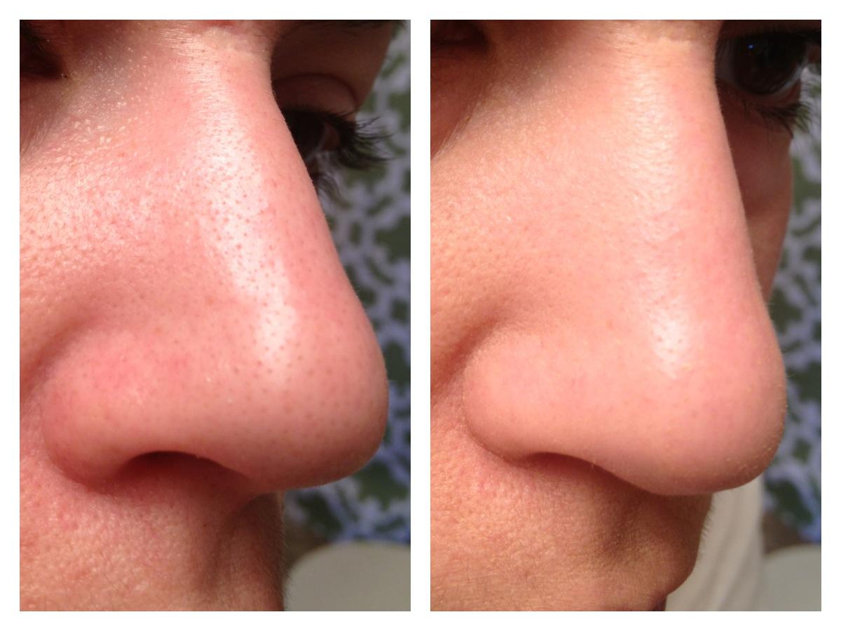 accutane minimize pores