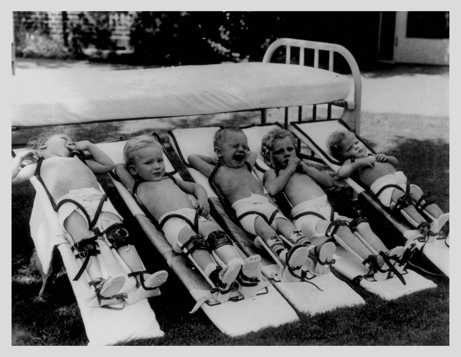 paralysis epidemic of the 1950s poliomyelitis essay