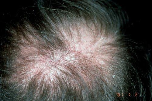 Red ginseng de la caída de los cabello