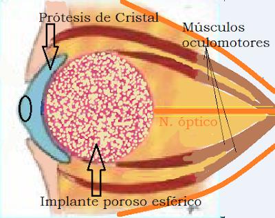 protesis+orbitaria.png