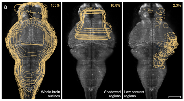 Zebrafish brain mapping