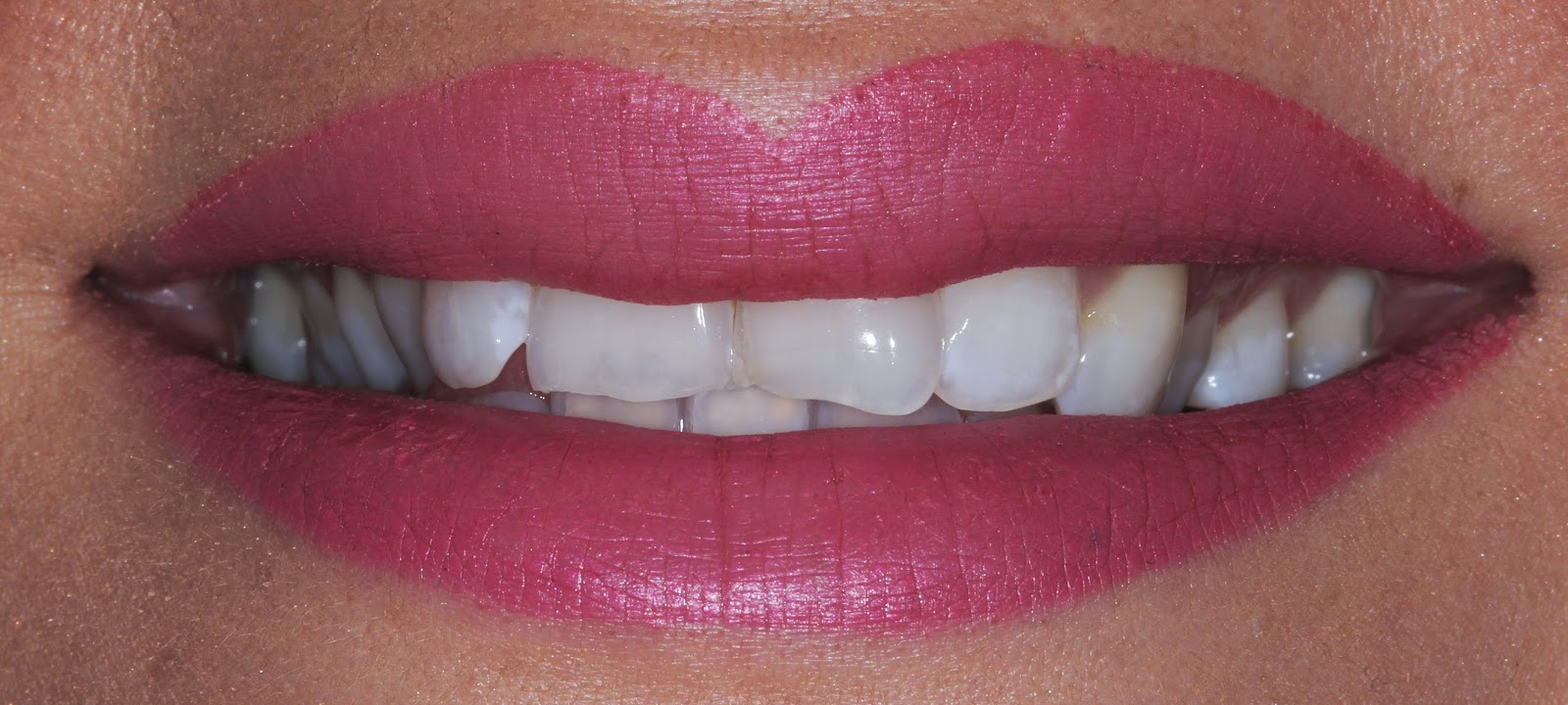Teeth After Whitening