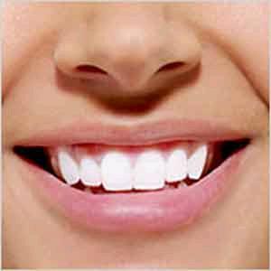 لماذا يكون تبييض الأسنان مؤلماً??