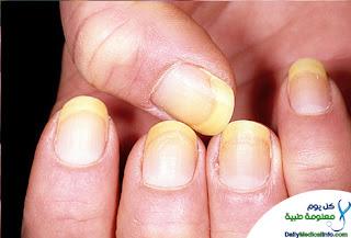 بالصور اظافرك عنوان صحتك Nails+(2)