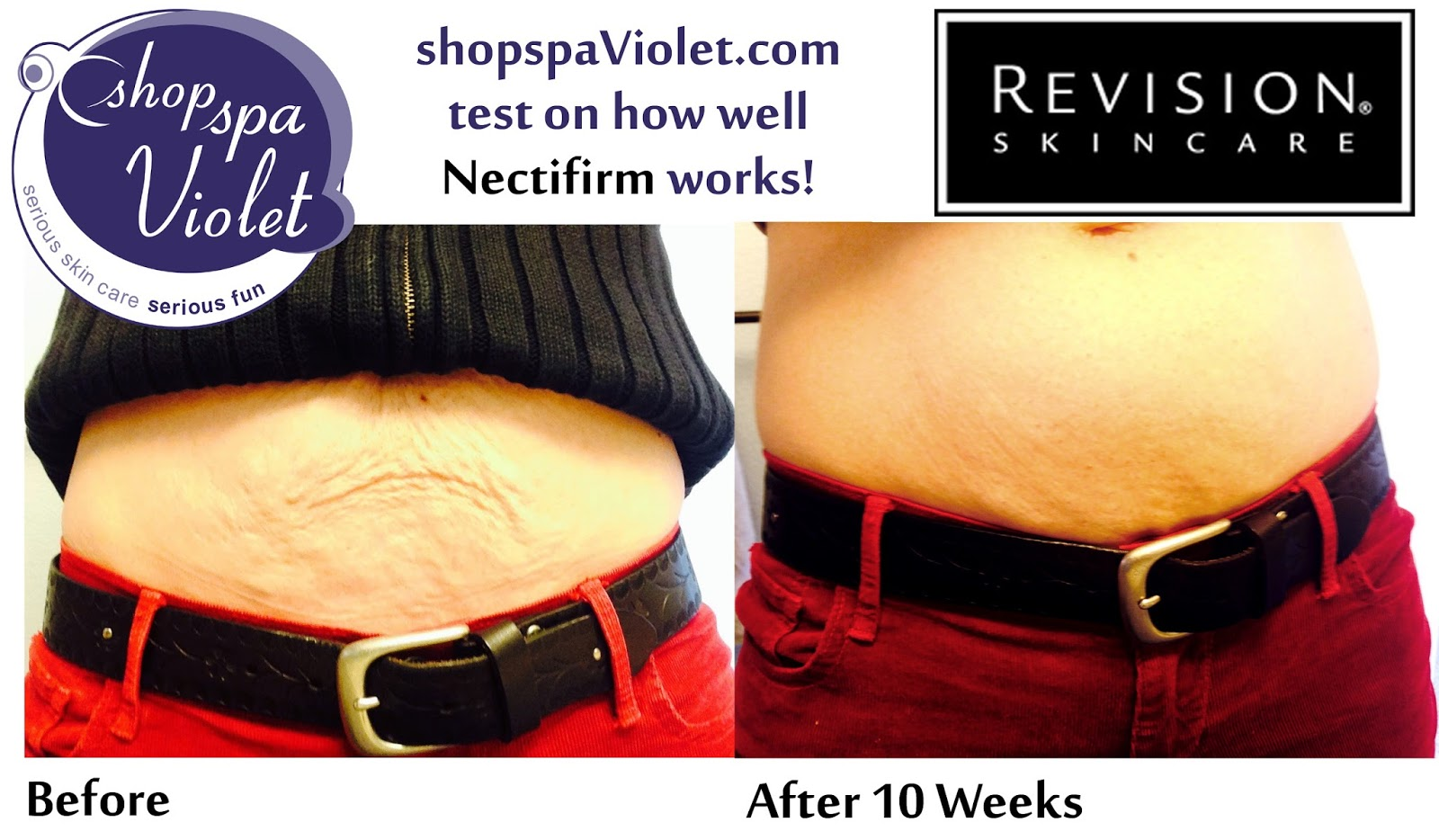 Nectifirm Before and After stomach saggy skin