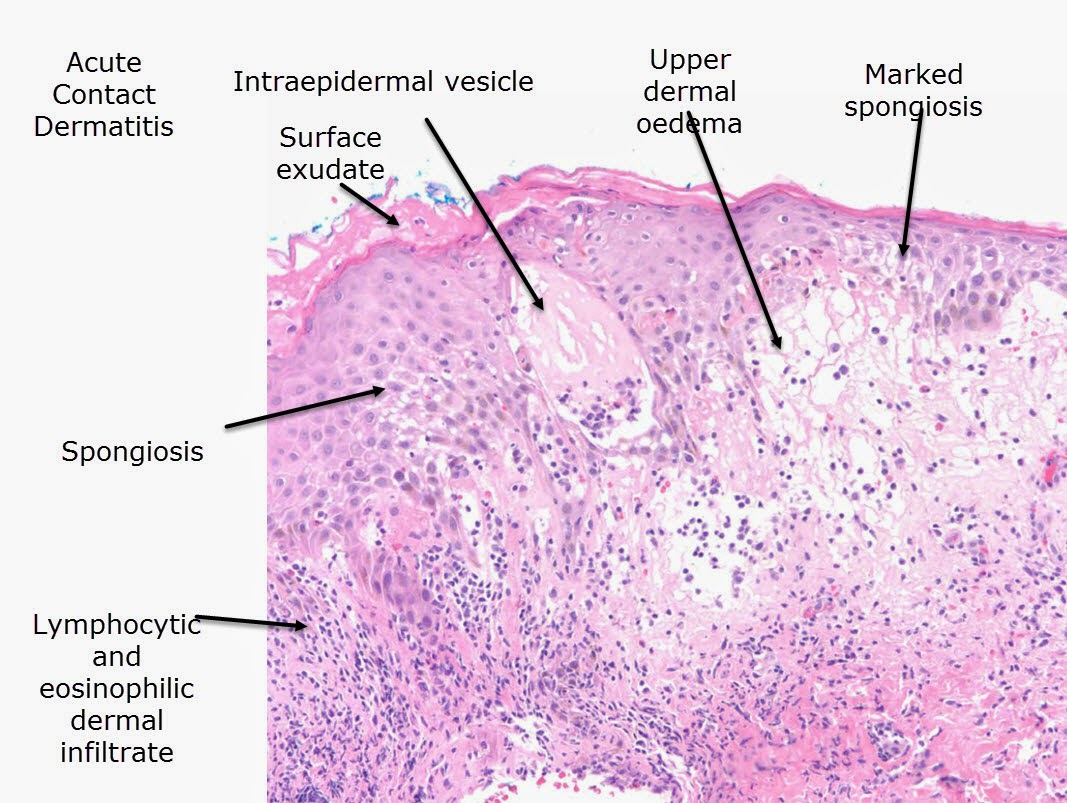 a definition and discussion of eczema Eczema is a pattern of inflammatory response of the skin histological definition: presence of a lymphocytic infiltrate around bv,associated with spongiosis.
