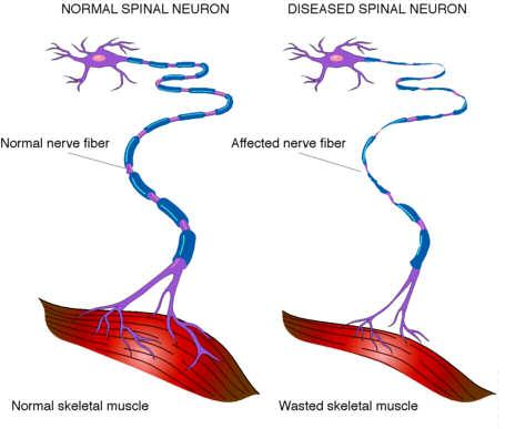 What is equine motor neurone disease tack n tails What is lower motor neuron disease