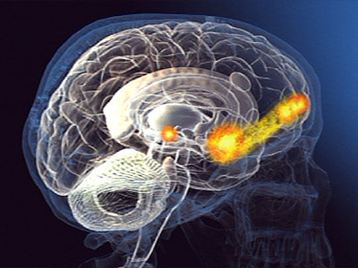 Sex on the Brain: 12 Lessons to Enhance Your Love Life, Daniel G. Amen M.D., Goo