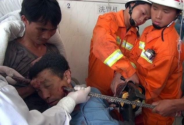 Lelaki masih hidup selepas kepala tertusuk pancang besi