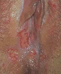 Herpes Pada Kelamin