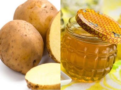 khoai tây + mật ong
