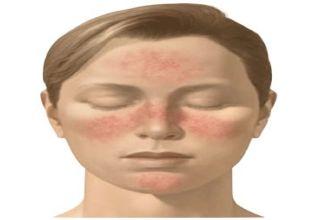 La rosacée, connue aussi sous le nom de couperose, est une maladie cutanée incurable au départ bénigne qui se manifeste par des rougeurs chroniques au niveau du nez, des joues, parfois aussi au niveau du menton et du front. Ces symptômes 'accompagnent d'une sensation de picotement, notamment au niveau des yeux.