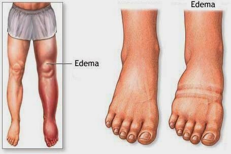 diet treatment to alleviate edema, Skeleton