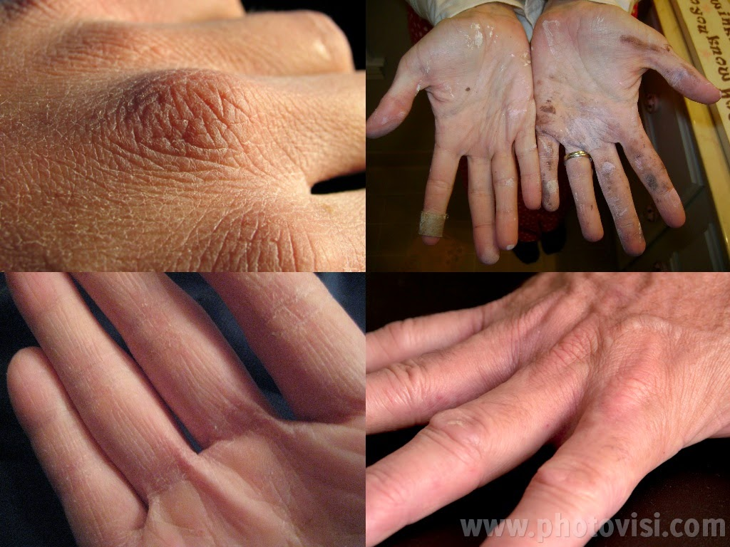 تنعيم اليدين والتخلص من الشحوب والتشققات في نصف ساعة