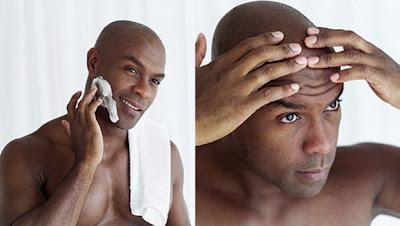 El acné en pieles oscuras y negras tiene una casuística diferente, pero las consecuencias tampoco son las mismas y merece prestarle atención