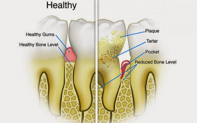 Remedies To Remove Tartar And Plaque Build Up On Teeth | The ...