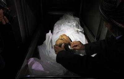 Imagens fortes-atenção- crimes de Israel - foto 7