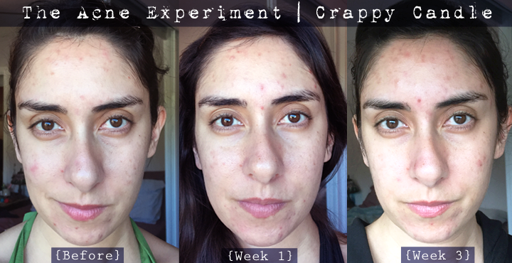 Before & After Paula's Choice Clear Regular Strength Anti-Redness Exfoliation Solution (2% Salicylic Acid)