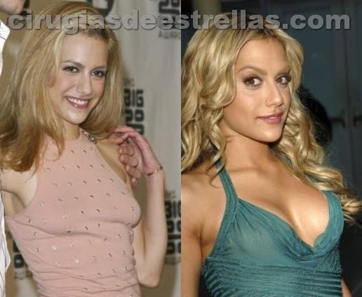 antes y despues de Brittany Murphy