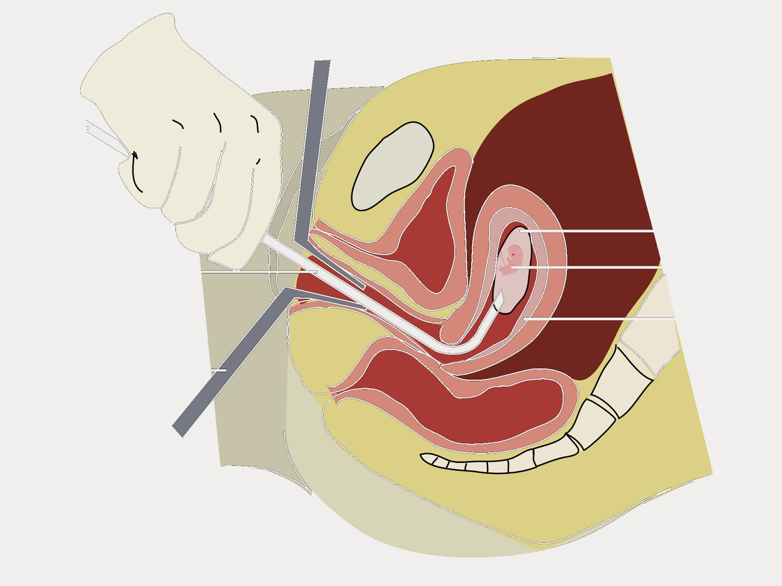 How do vacuum abortion (mini-abortion) - how dangerous this operation