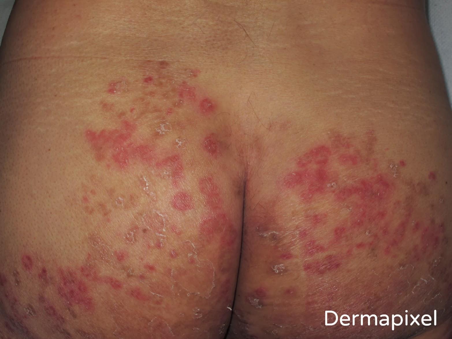 Las suciedades al tratamiento atopicheskogo de la dermatitis
