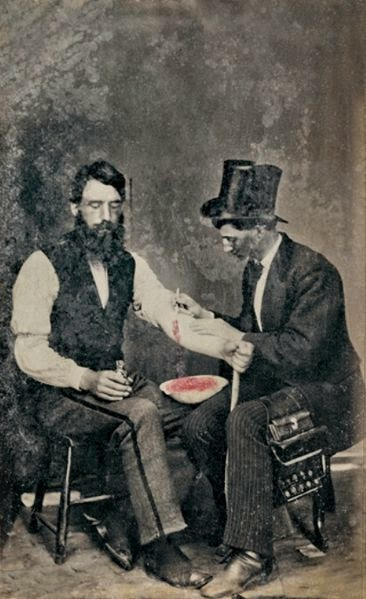 bloodletting photograph